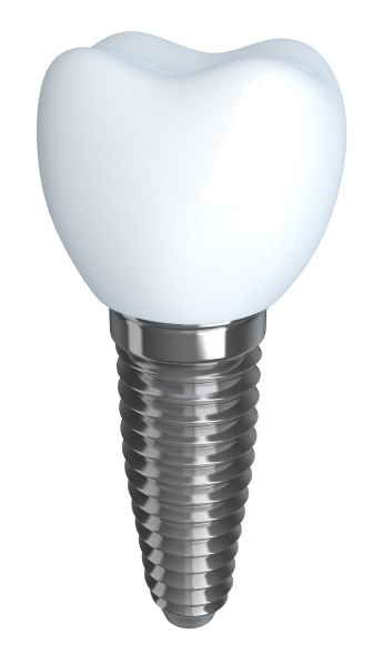 114141178 Implant (453 x 600)